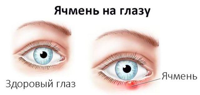 Дают ли больничный при укусе клеща, мигрени, ячмене на глазу, пиелонефрите