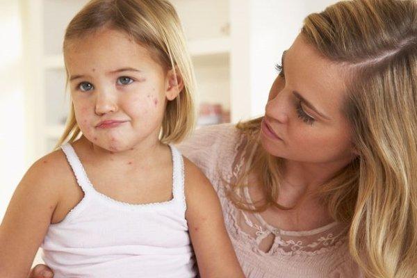 Сколько сидят на больничном с ветрянкой у ребенка и взрослого