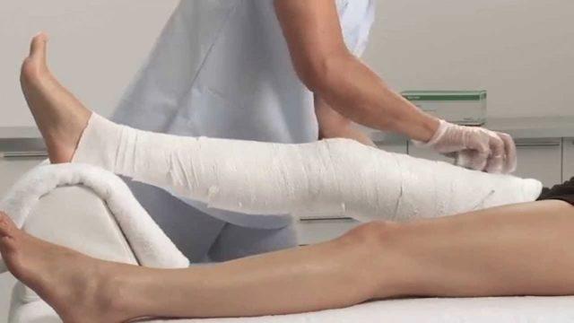 Перелом ребра, руки, ноги: сколько дней больничный, как оплачивается