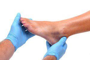 Растяжение связок голеностопа: сколько дней больничный, дают ли листок нетрудоспособности