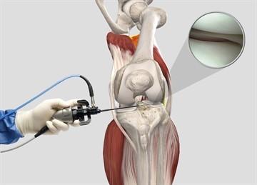 Больничный после артроскопии коленного сустава и эндопротезирования тазобедренного сустава